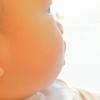 虫刺されで目が腫れた!赤ちゃん・幼児に起きやすい感染症・蜂窩織炎(ほうかしきえん)
