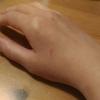 手がボロボロ(´Д`)