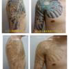 肩~胸のカラータトゥーのレーザー治療です