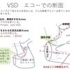 心室中隔欠損症(VSD)の孔の位置について その3〜小児循環器医に必要な知識 VSDはエコーでどう見えるか?  疾患24
