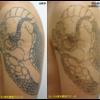 エンライトンⅢがリリースされました!NEWピコレーザーです(予約開始です)!圧倒的症例数!ピコレーザー(エンライトン)でタトゥーを除去しました。2回治療後です。
