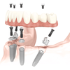 Steps to Abide by for Finding the Best San Diego Dentistry Studio