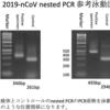 新型コロナウイルスRT-PCR検査の概要