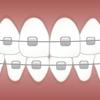 20歳から歯列矯正を開始した私が感じた、メリット、デメリット、注意点【体験談】