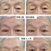 眼瞼下垂の典型症状と治療による改善