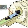 てんかん発作とMRI検査