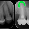 神経のない歯が痛い