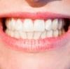 【TCH】歯が無くなる!?3つの歯ぎしりと、その治療法