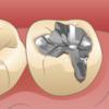 いま日本中の歯科医院が悲鳴を上げている!その理由とは?