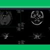 日本で承認されている2つのAI医療機器についてまとめてみた!