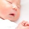 突然現れた赤いアザ!赤ちゃんによくあるいちご状血管腫とは?