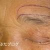 顔面神経麻痺で眉毛がさがって視野がせまい。眉毛をあげる手術。70代女性 の続き