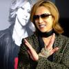 【緊急手術】YOSHIKI(ヨシキ)「心身ともに限界」で引退、X JAPAN解散?