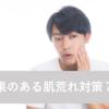 【必見】汚肌・肌荒れ男子はモテない!きれいな肌を作るために実践していること7つ