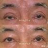 難易度の高い眼瞼下垂の他院修正例 〜高度な癒着をはがして二重幅をせまく修正〜