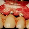 歯のインプラントに関して