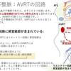 不整脈:上室性頻脈(SVT) AVRT(房室回帰性頻拍)について  〜基本45〜