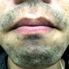 【メディオスター12回目】アゴの髭が全然減ってない気が・・・いつになったら効果を実感できるのか【ヒゲ脱毛体験記 湘南美容外科】