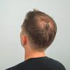 東京の植毛クリニックお勧めは?増毛とはどう違うの?