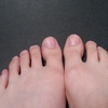 爪水虫の治し方。今は塗り薬(外用薬)も選択肢にあります。