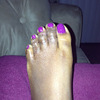 Hammer Toe Operation Problems