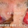 黒目の中心がでていないのは病気です。重度の腱膜性眼瞼下垂症の治療  70代 女性 続き