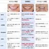 歯 ホワイトニング&歯列矯正(イケメンになる方法)