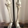 膝のレントゲンではわかりにくい僅かな歪みによる膝の不調