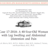 Case 17-2018: A 40-Year-Old Woman with Leg Swelling and Abdominal Distention and Pain