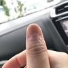 Dermadry(ダーマドライ)での治療効果と口コミ&評価 4週間目
