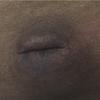 症例38:腹痛を訴える肝硬変で大量腹水のある58歳男性(J Emerg Med. 2020 Nov;59(5):710-711.)