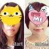 【大人の歯列矯正890日目】顔の変化を公開&歯列矯正開始から2年6か月(画像あり)