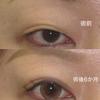 二重幅広めの眼瞼下垂手術 ダウンタイムが長いです 30代女性