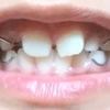 子供の歯列矯正(床矯正)のお話④ ~歯列矯正開始・受け取り編~