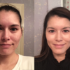 How to Get the Most Out of Tretinoin