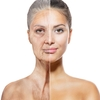 What will Facial Rejuvenation Look Like at My Age?
