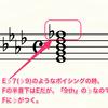 「ギタリストにとっての五線譜、要る要らない?」は考える前に理解すればプラスになる