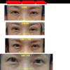 眼瞼下垂の手術を行いました。