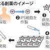 じじぃの「パーキンソン病・iPS細胞でつくる薬の未来・治療に活用へ!WBS」