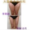 脂肪吸引  ⚡️劇的な変化⚡️