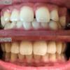 【矯正日記5-1】矯正終了!その後歯に付けられたのがこれ。