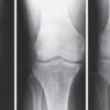 変形性膝関節症のX線画像の診方:Kellgren-Lawrence分類(K-L分類)