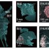 がん微小転移の定量化
