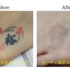 圧倒的症例数!ピコレーザー(エンライトン)でタトゥーを除去しました。7回治療後です。