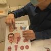 眩暈は「良性発作性頭位めまい症(BPPV)」でした。