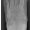 Can Accessory Navicular Syndrome Be Treatable