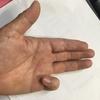 ばね指 大変痛いです!