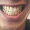 【矯正ブログ4】僕が歯に使った200万円の内訳を大公開!