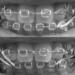 歯列矯正中のゴムかけによる効果は?3ヶ月間の実施で変化が現れた!