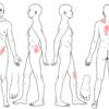 産後 股関節 症例